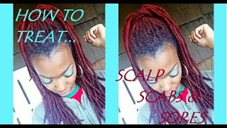 How To Treat Your Scalp Sores and Scabs (for all hair types)