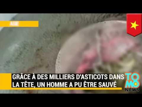 Grace à Des Milliers D'asticots Dans La Tête, Un Homme A Pu être Sauvé.