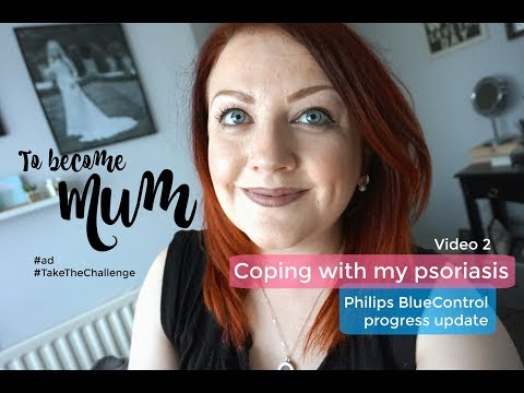 Coping With My Psoriasis -  Philips BlueControl Progress Update (video 2)  #ad