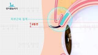 쌍커풀높이기 눈재수술 대구 강남퍼스트성형외과