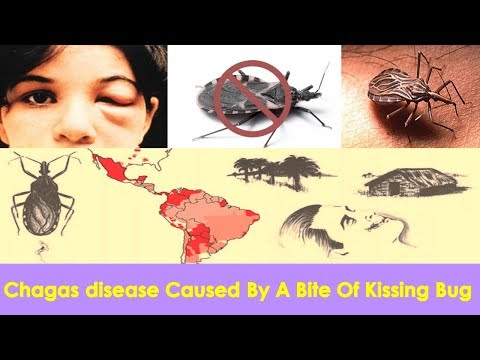 Chagas Disease  Caused By A Bite Of Kissing Bug