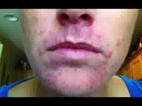 steroid cream cystic acne