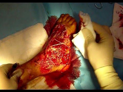 Surgical Wound Debridement +18