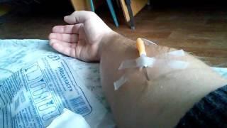 Лечение. Хронический гастродуоденит. Хронический холецистит. День 6