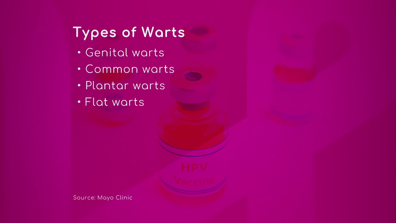 Hpv Types Of Warts Youtube