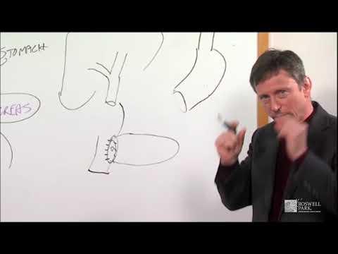Whipple Operation Description | Roswell Park Patient Education