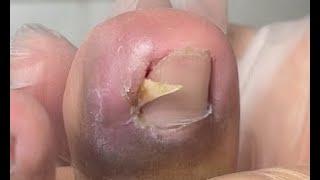 Extremely sharp nail