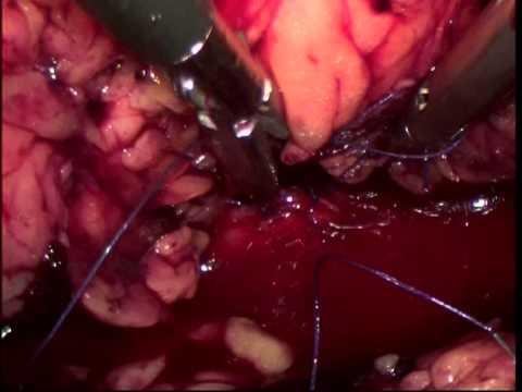 Лапароскопия желчного пузыря (удаление камней либо всего