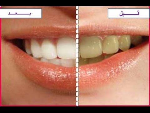 إزالة الأسنان بدون طبيب.. hqdefault.jpg