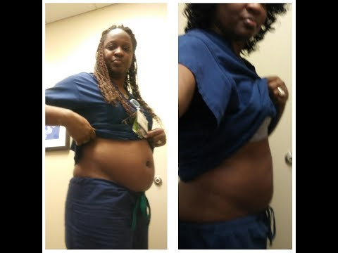 Ultra is happy she saw this Dallas Fibroid Expert
