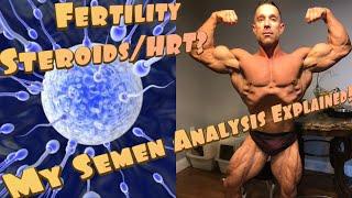 Greg Top Male Fertility Supplements – Icalliance