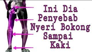 Senam syaraf kejepit di pinggang sciatica Di video kali ini kang abay sengaja buat 6 gerakan untuk m.