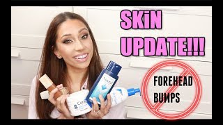 HOW TO GET RID OF TINY FOREHEAD BUMPS! | SKIN UPDATE!!!!!!