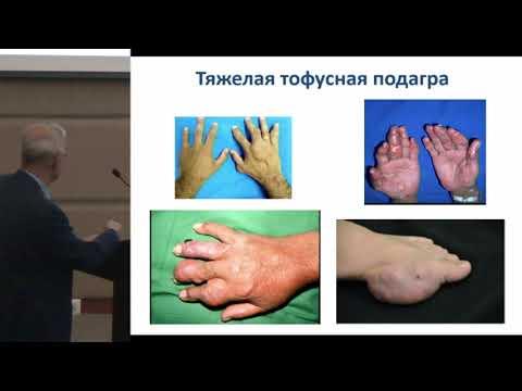 Варданян А.В., Лечение подагры: взгляд хирурга.