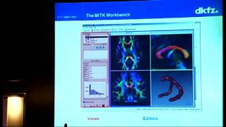 16 - K. Maier-Hein - MITK -- Medical Imaging Toolkit software for DTI processing
