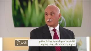 هذا الصباح-مقابلة مع الدكتور عادل كمال بشأن الأكزيما