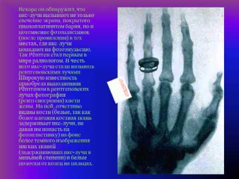 Ультрафиолетовое излучение Википедия
