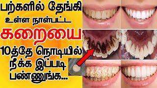 பற்களில் தேங்கி உள்ள நாள்பட்ட கரையை 10த்தே நொடியில் நீங்க இப்படி பண்ணுங்க   teeth whitening in tamil