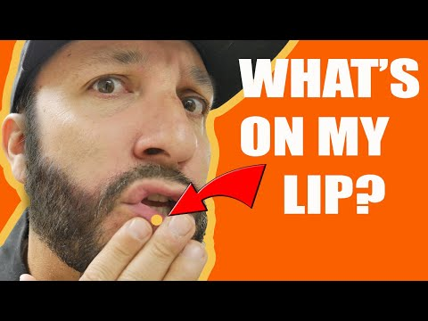 ODM - What The Heck Is This On My Lip???