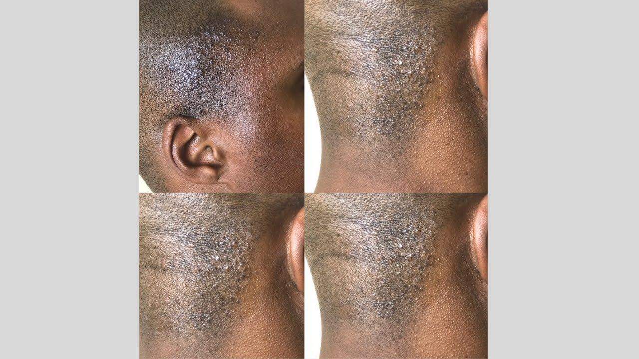 Bumps razor Razor Bumps