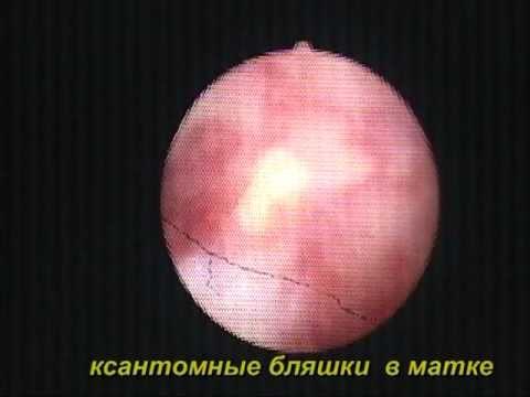 Полип эндометрия: симптомы, диагностика, лечение