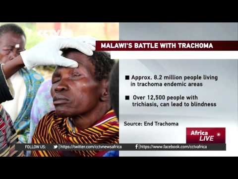 Doctor curing preventable blindness in remote areas of Malawi