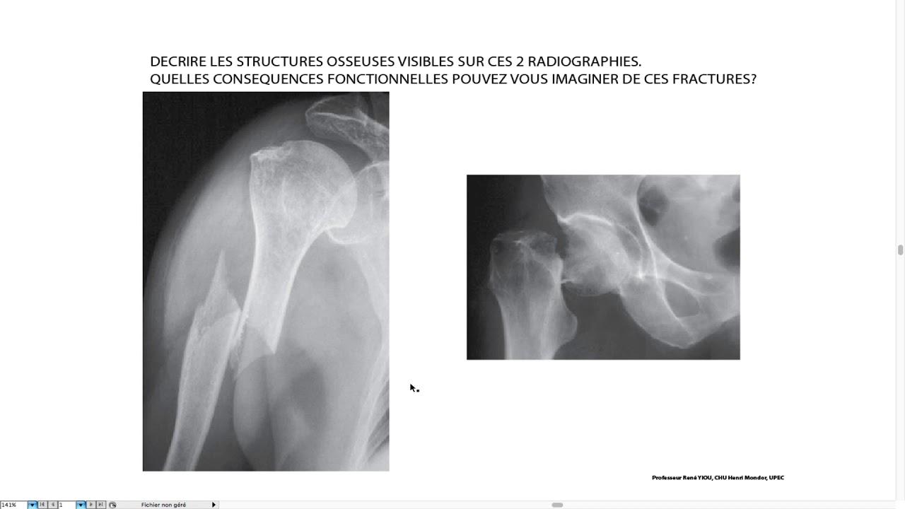 16_Exemples de fracture - YouTube
