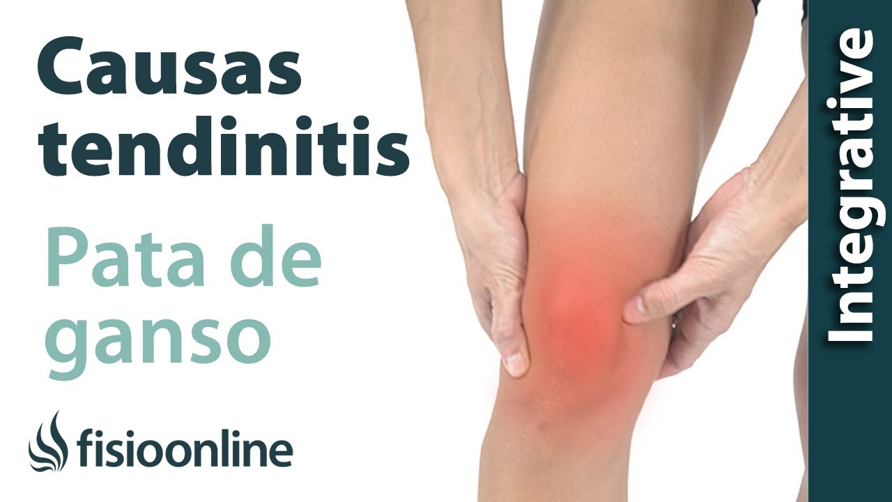 Causas de la tendinitis de la pata de ganso según la medicina ...