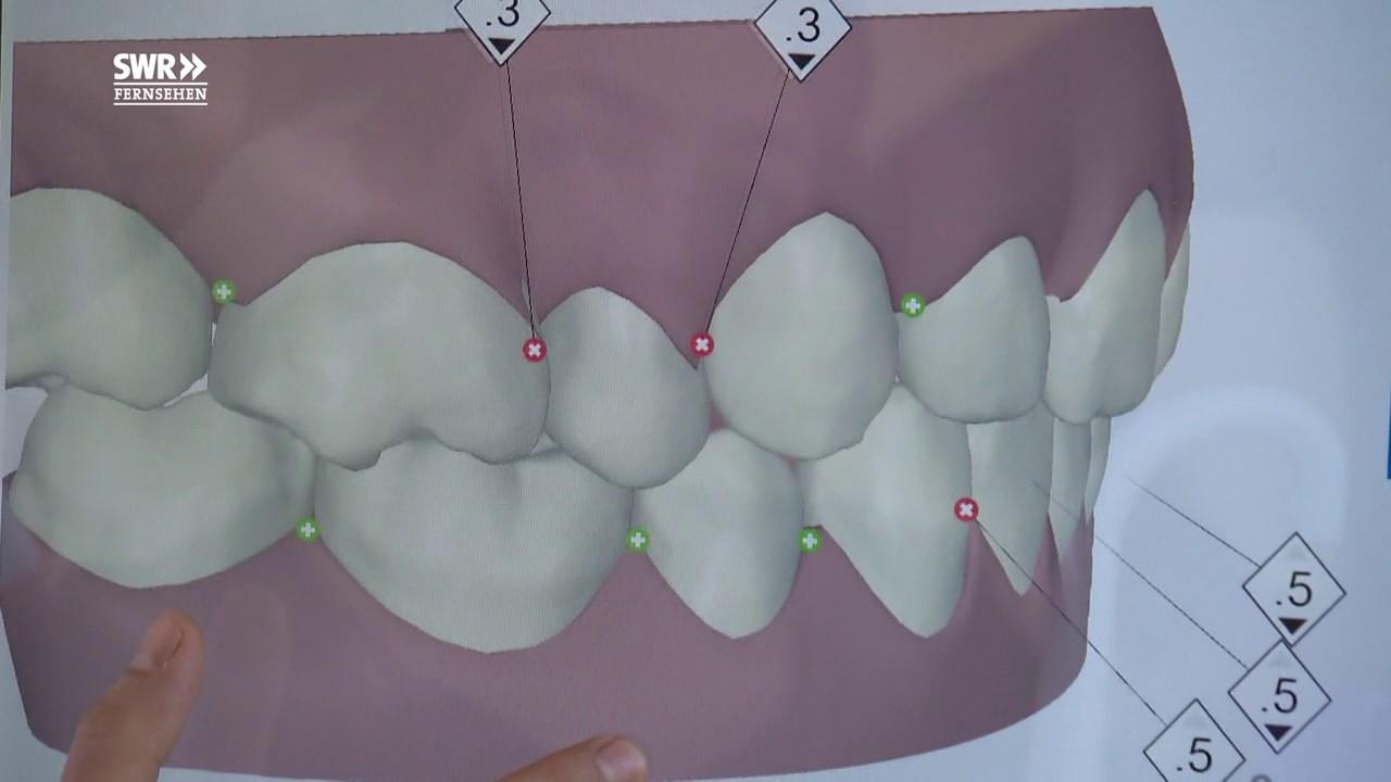 Zahn Nachwachsen
