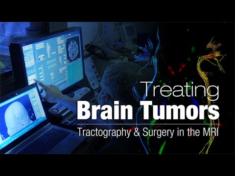 Brain Tumors Tractography and Surgery in the MRI - Health Matters