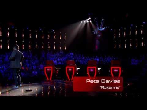 Pete Davies - Roxanne. The voice UK (season 3) auditions