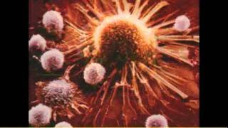 Systemic Enzymes Work As Anti-Inflammatory Agents Part 2