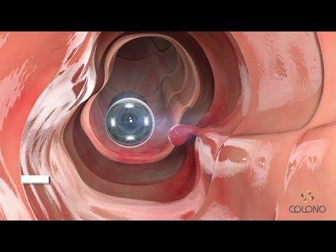 Cápsula Endoscópica - Colonoscopia e Enteroscopia por Cápsula
