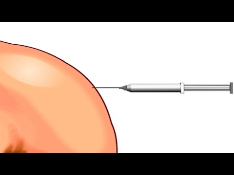 How Vaccines Work in the Human Body Animation – Immune System Response to Vaccination Video