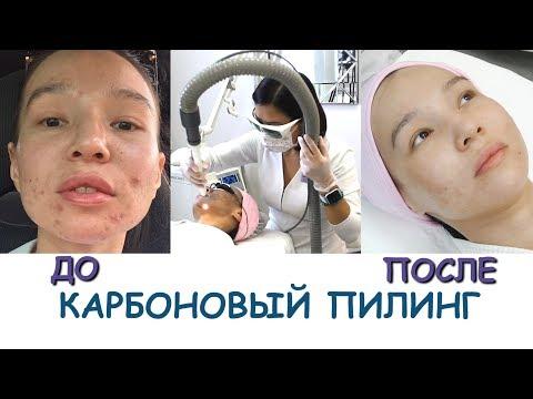 Лазерный КАРБОНОВЫЙ ПИЛИНГ💖 ДО и ПОСЛЕ!!!