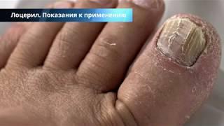 лоцерил лак от грибка ногтей - инструкция и отзывы