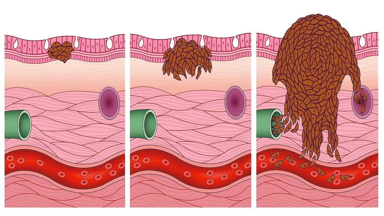 different types of skin cancer   skin cancer - youtube, Skeleton