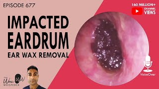 677 - Impacted Eardrum Ear Wax Removal