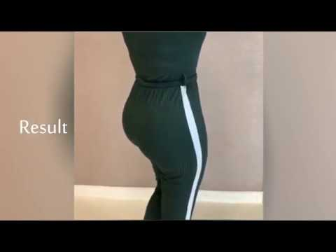 BBL On Skinny Person Before And After | Dermalmd Glute Booster Serum
