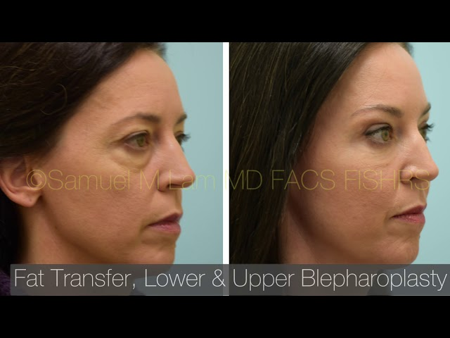 Dallas Fat Transfer, Upper and Lower Eyelid Surgery Before and After