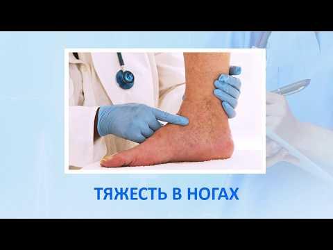 Лечение варикоза в Алматы. Радиочастотная коагуляция (абляция).