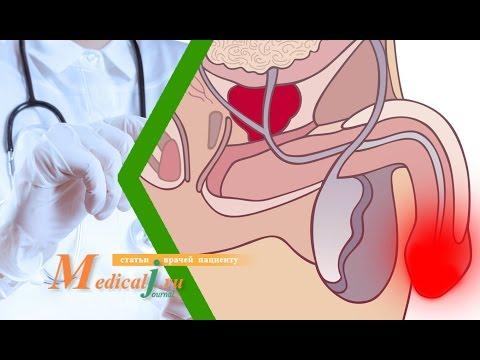 Баланит и баланопостит. Какие причины? Какие симптомы? Как лечить?
