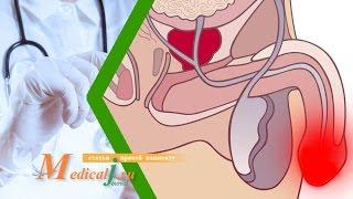 видео Уретрит у мужчин: симптомы, признаки, фото выделений, диагностика и анализы