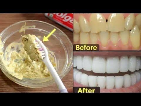 احصل على أسنان بيضاء في دقيقتين فقط / كيفية تبييض الأسنان في دقيقتين.