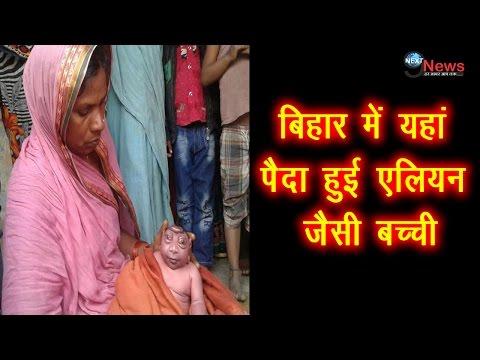 बिहार में यहां पैदा हुई एलियन जैसी बच्ची   Alien looking girl born in Bihar