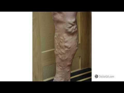 Why is it important to get varicose veins treatment? - Dr. Douglas Stafford, MD