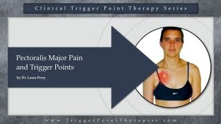 Pectoralis Major Pain and Trigger Points