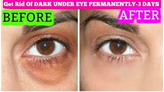 How To Get Rid Of Dark Circles In 3 Days Permanently | SuperPrincessjo