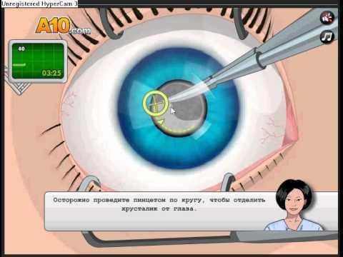 Игра операция на глазах - прохождение