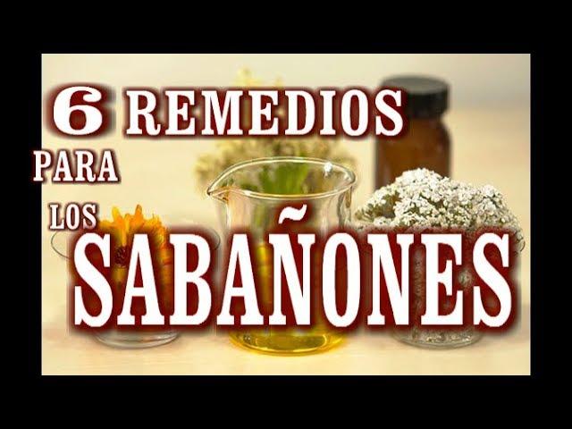 6 Remedios Caseros Para Los Sabañones Youtube